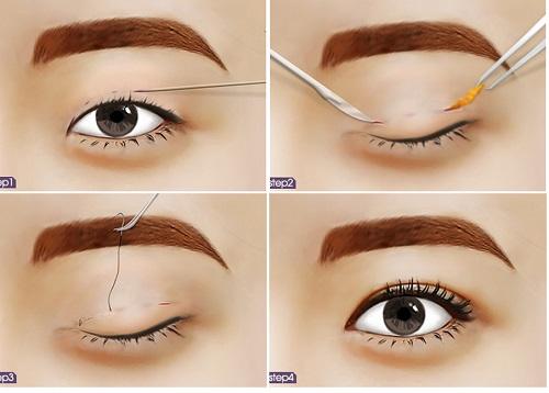 Nhấn mí mắt đơn giản bởi không cần đến sự can thiệp của dao kéo