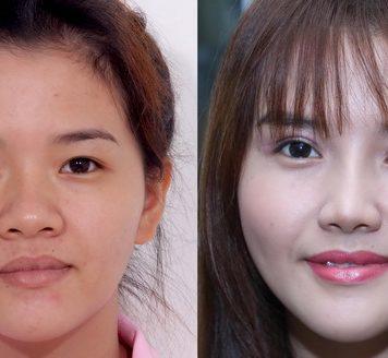 Có nhiều nguyên nhân khiến phẫu thuật cắt mí mắt bị sâu